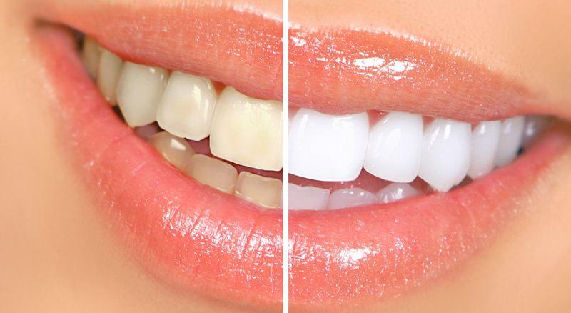 Izbjeljivanje zubi – savjeti stomatologa