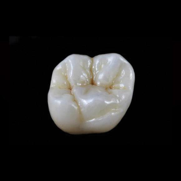 Zubne krune
